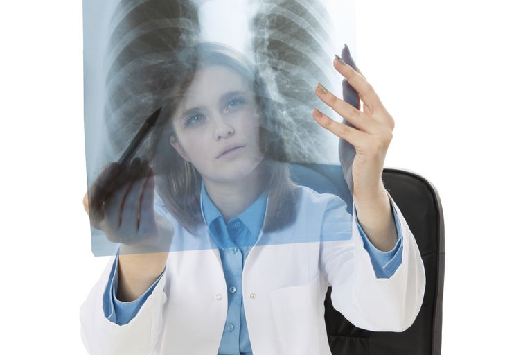 physician looking at chest x-ray to see if a cancer is stable disease