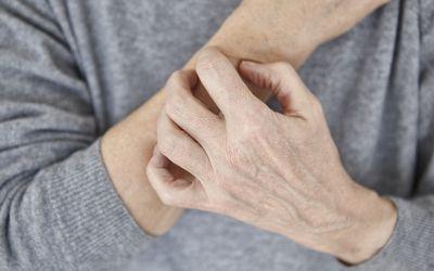 Senior woman scratching arm, close-up