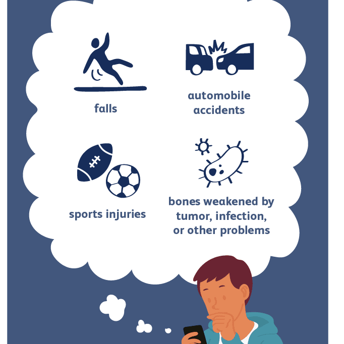 Common Causes of a Humerus Fracture