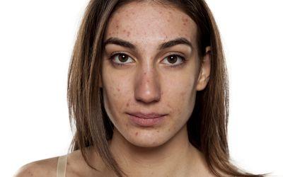 Will Cocoa Butter Remove Acne Marks?