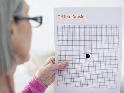 Amsler grid test for macular degeneration.