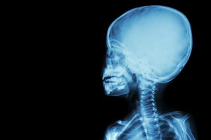 X-ray of a child examining Klippel-Feil syndrome