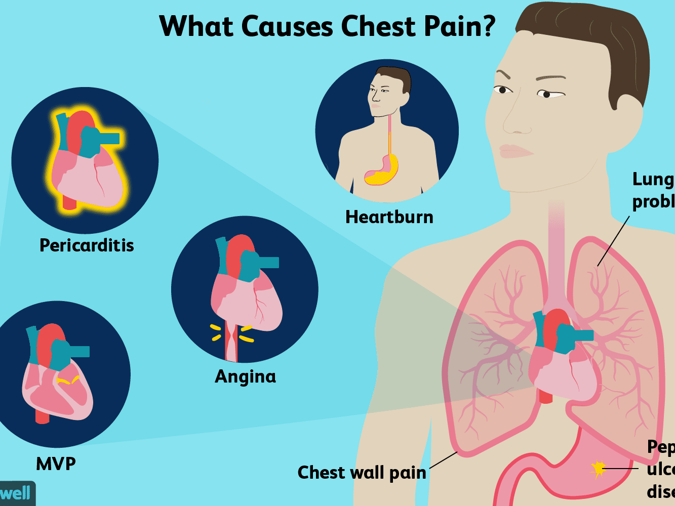 Chest Pain Causes Treatment And When To See A Doctor