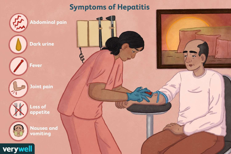 symptoms of hepatitis