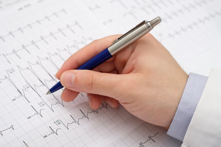 Doctor writing on electrocardiogram