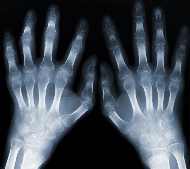 Two hands, x-ray