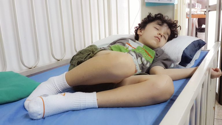 Child in hospital with leg weakness