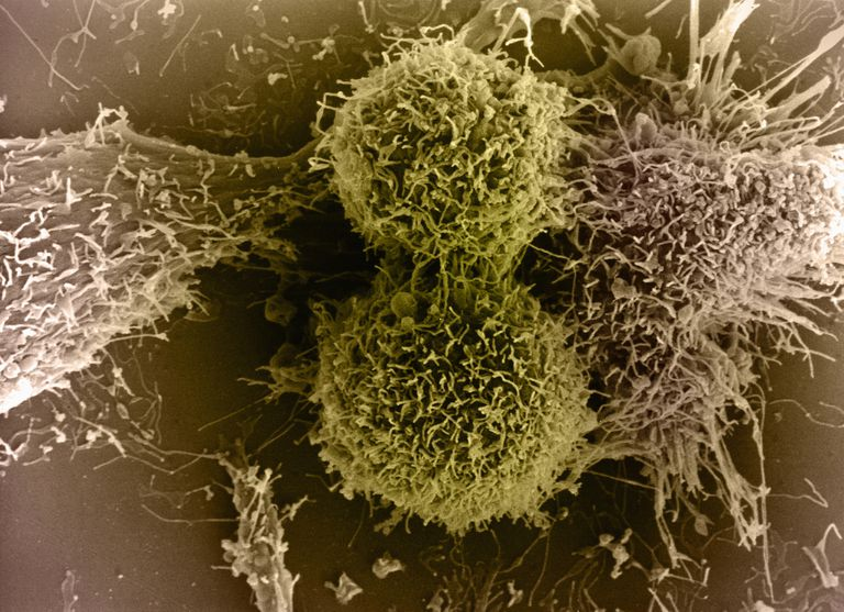 Colourised SEM image of Two Cytotoxic T Cells