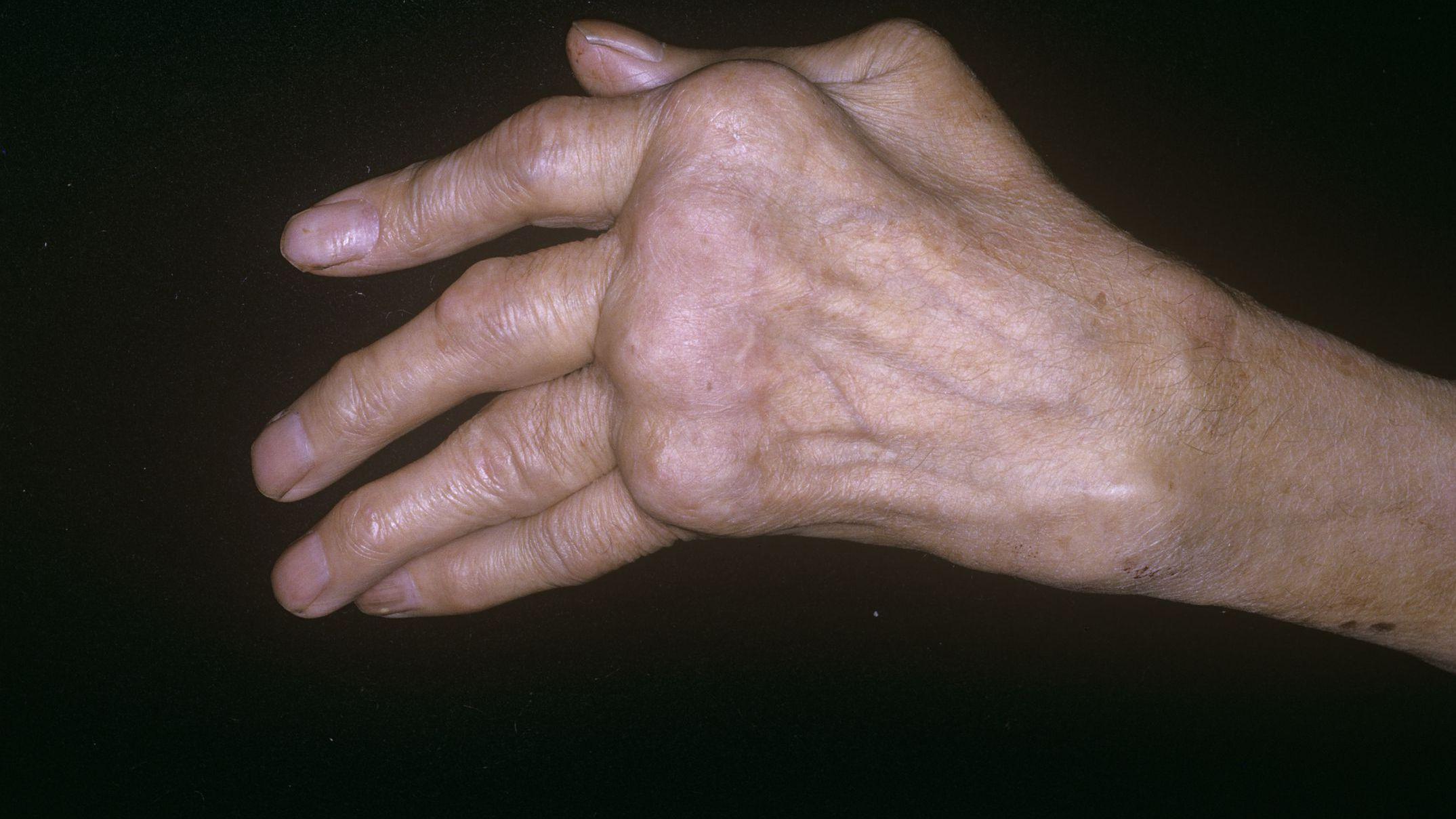 mi az a polyarthritis
