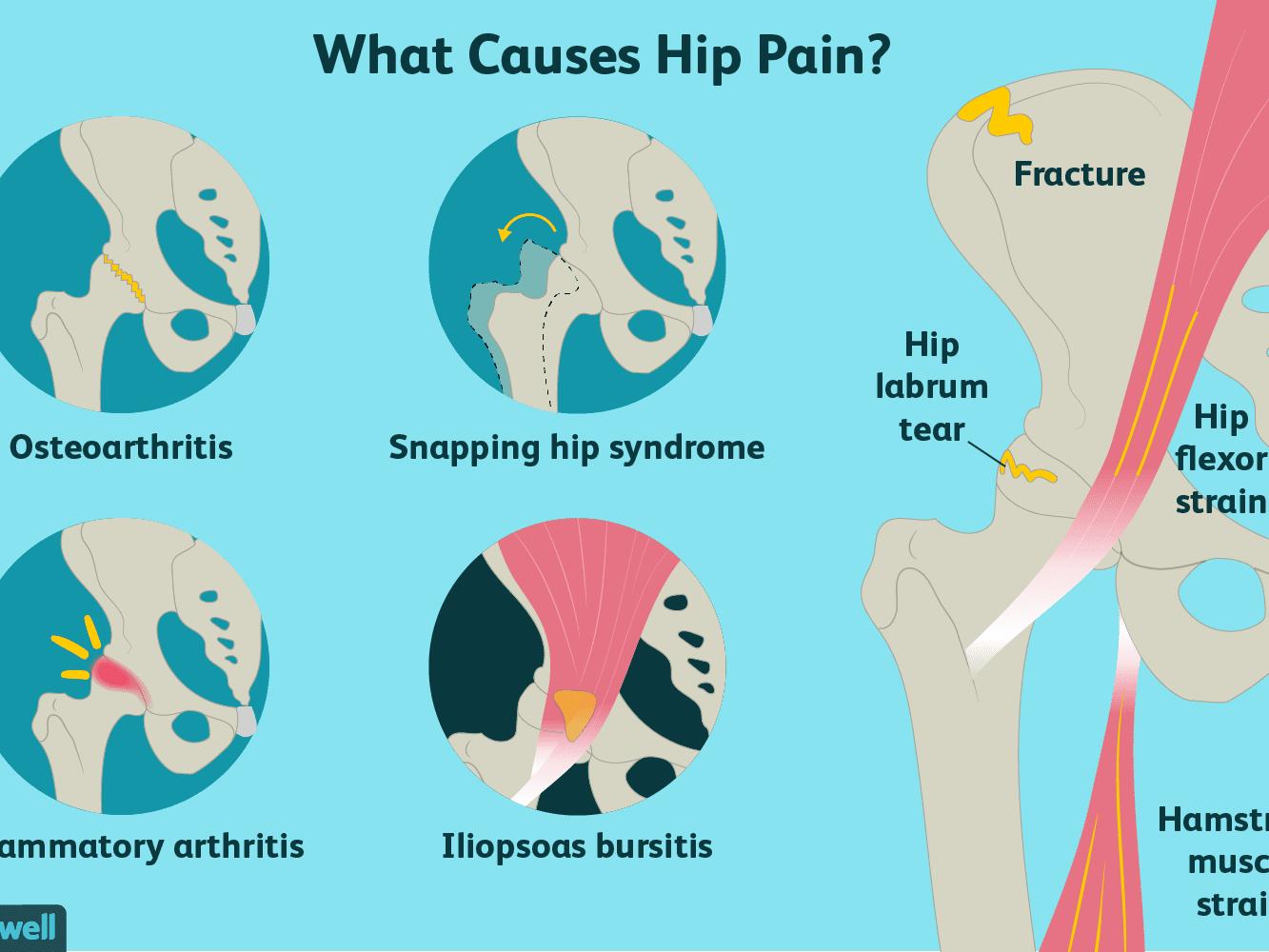 metastatic cancer buttock pain preparate de viermi în timpul alăptării