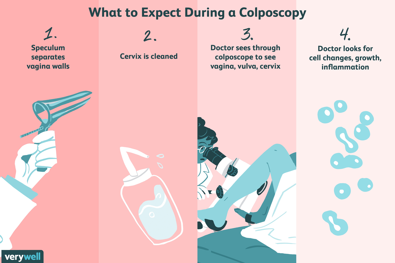 Colposcopy Overview