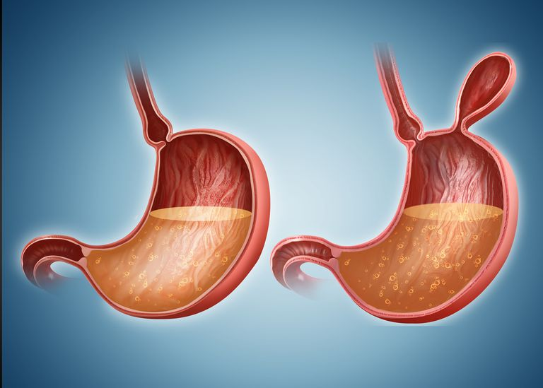 Bowel Obstruction: Symptoms, Causes, Diagnosis, and Treatment