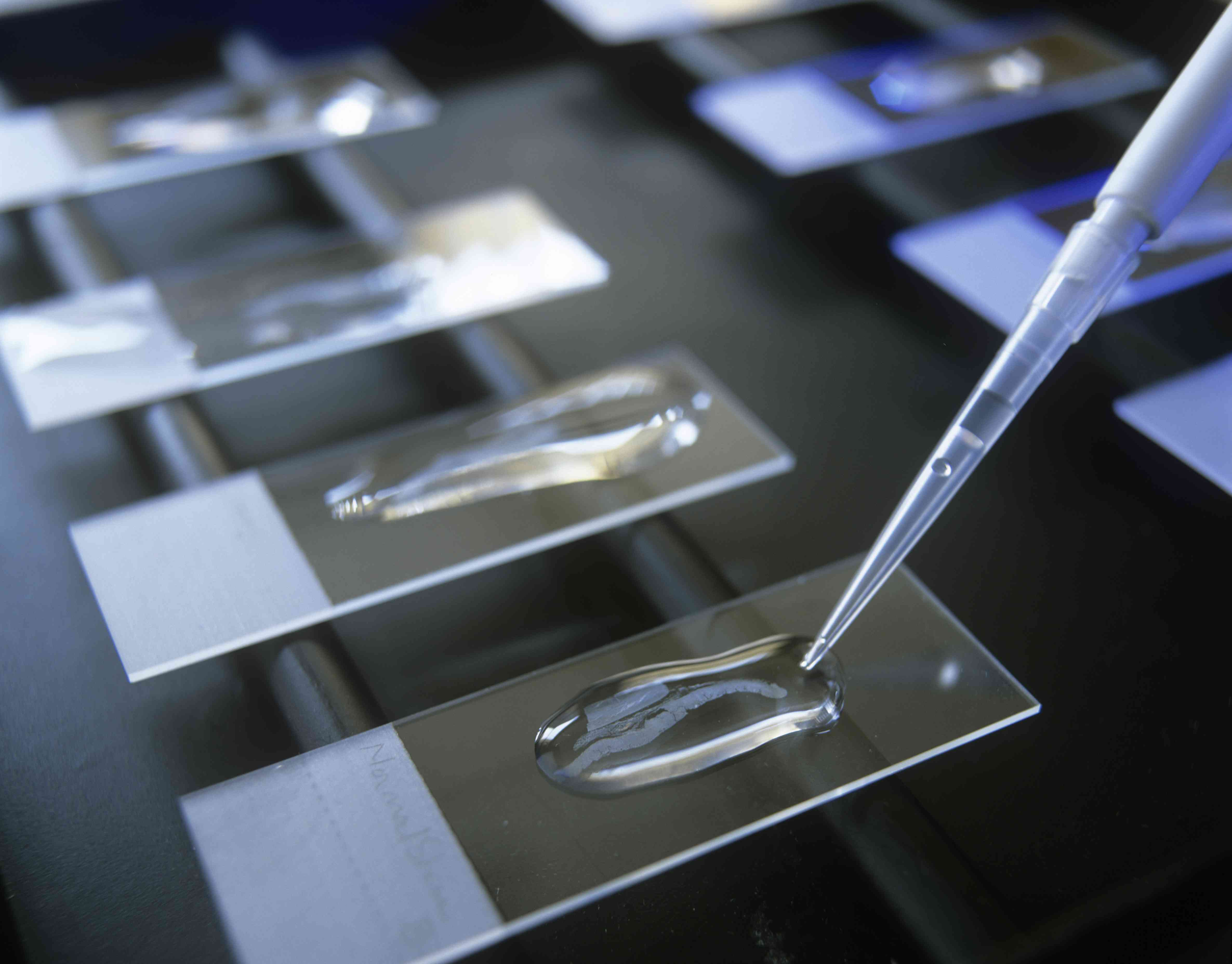 Cancer research lab slides close-up