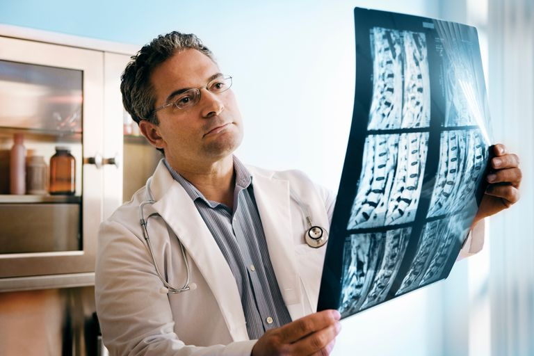 doctor looking at spine MRI