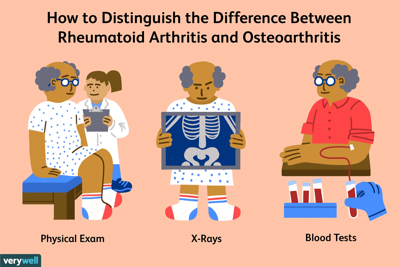 The Difference Between Rheumatoid Arthritis and Osteoarthritis
