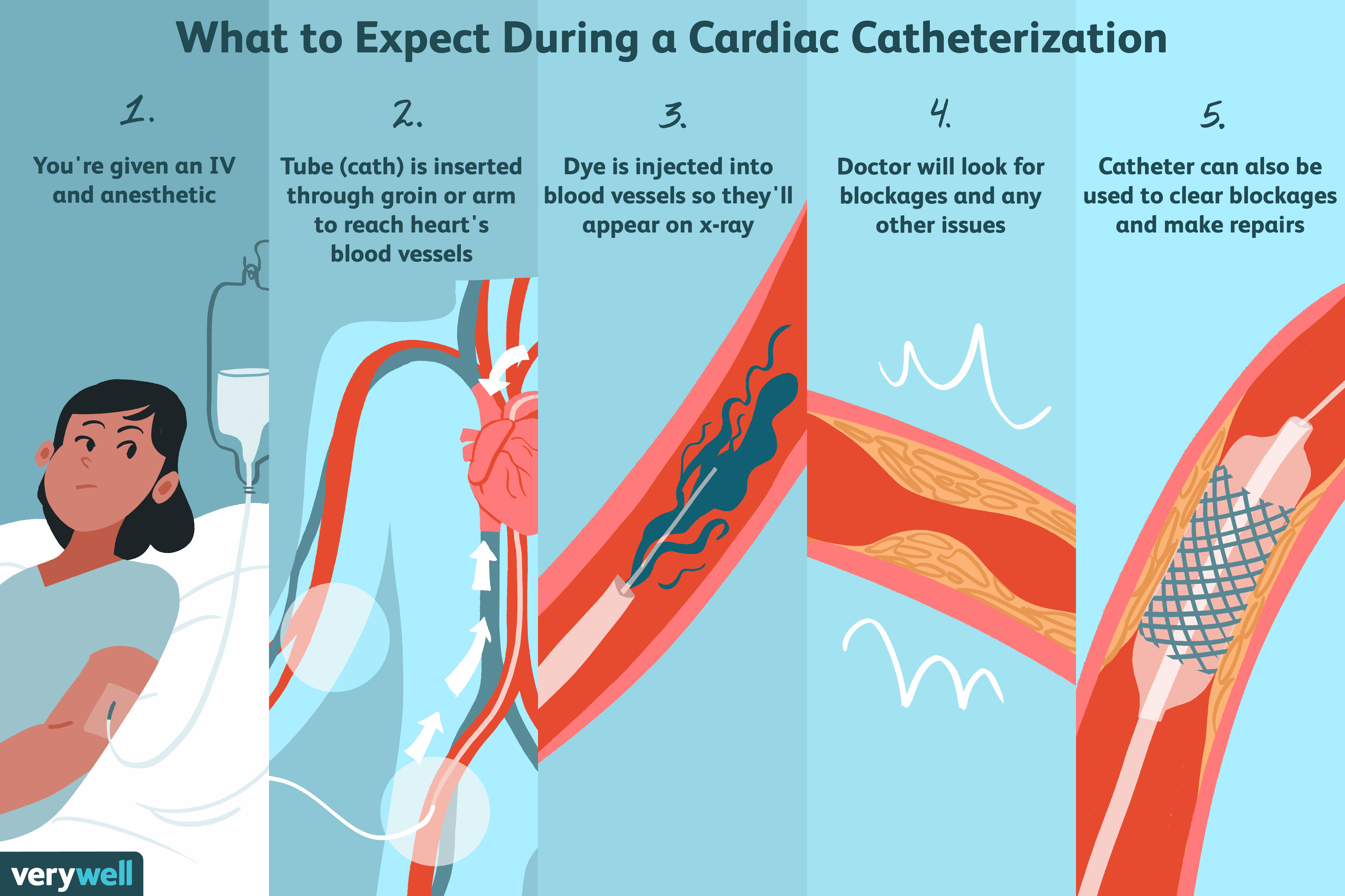 Cardiac Catheterization Uses Procedure Results