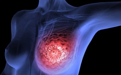 Tumor Grades and Breast Cancer Staging