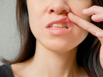 Canker sore on woman upper lip