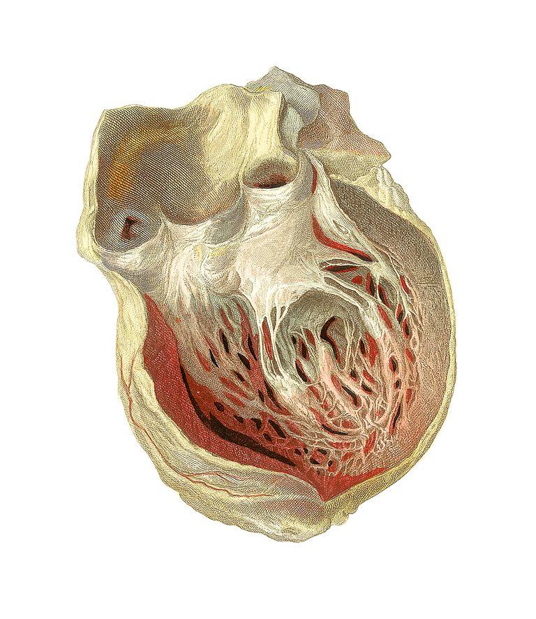 heart damage