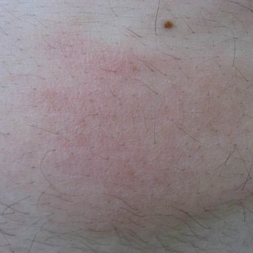 Gallery of Hives Pictures for Identifying Rashes