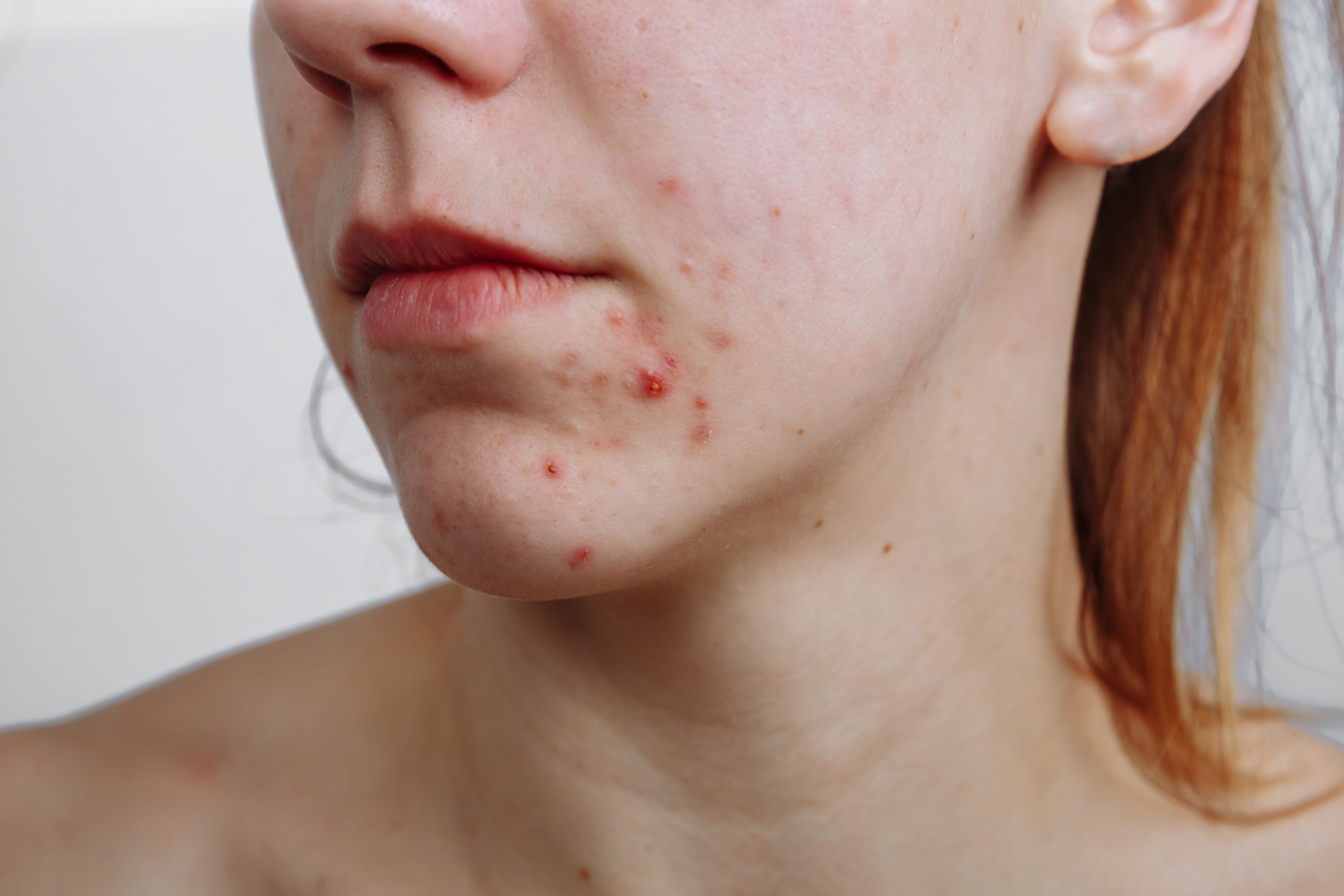 Can You Catch Acne From Someone Else