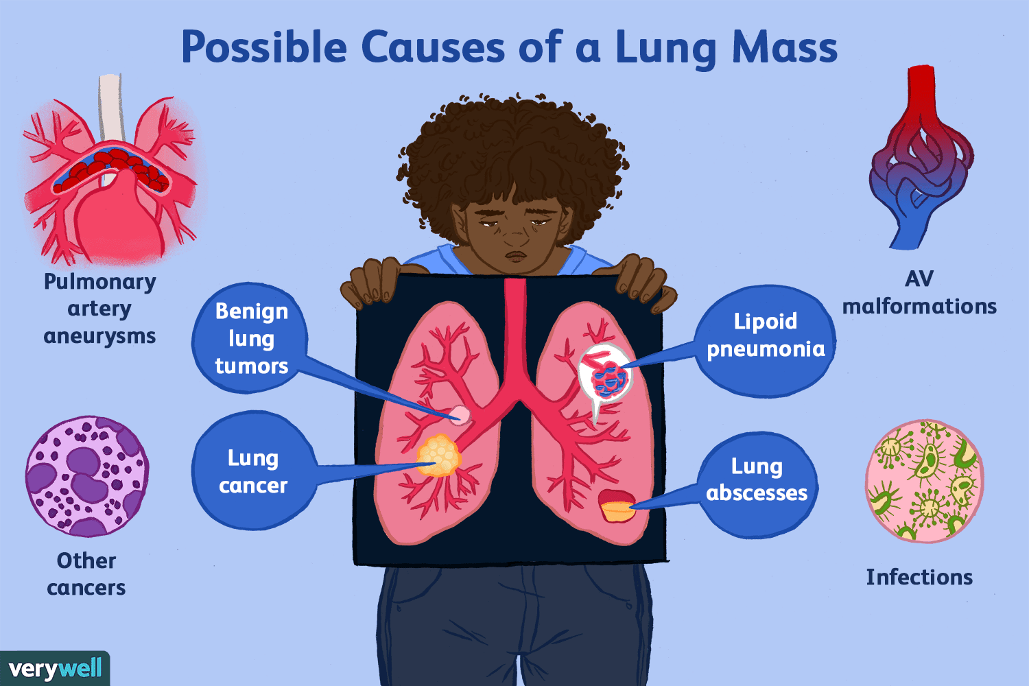 possible causes of a lung mass