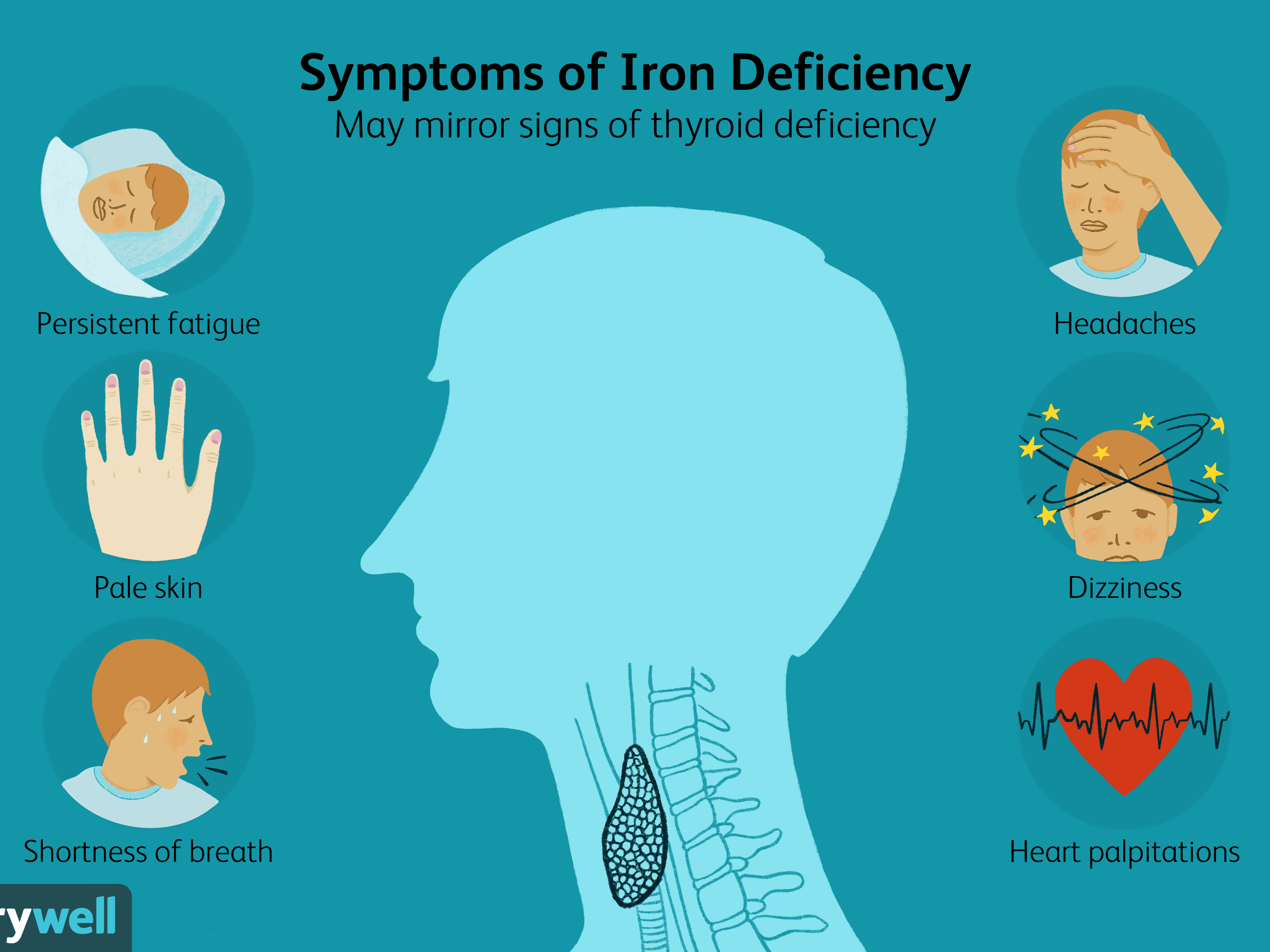 Iron Deficiency Thyroid Disease And Fatigue
