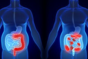 Parts of intestine affected by ulcerative colitis and Crohn's