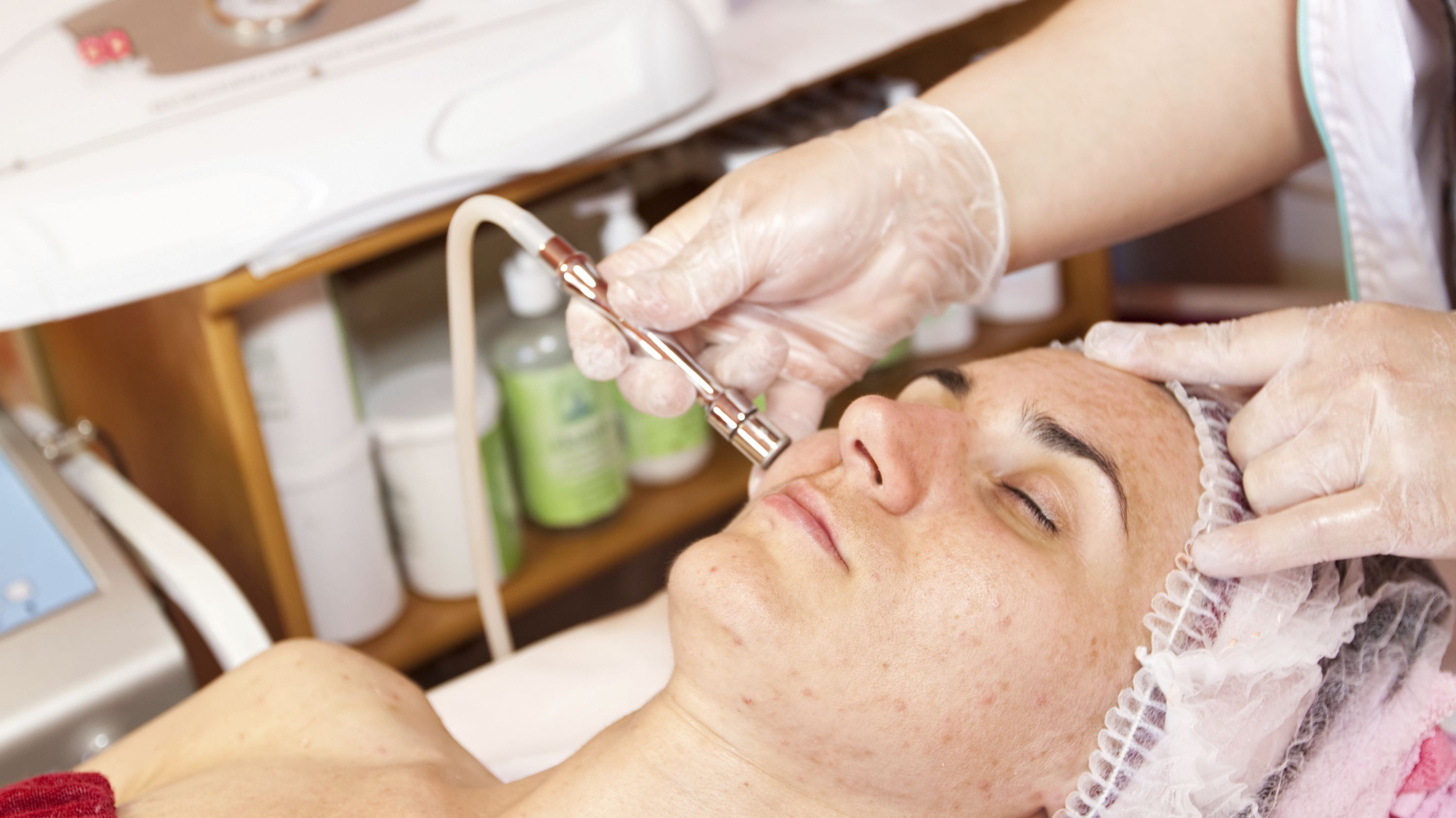 The Benefits and Limits of Microdermabrasion