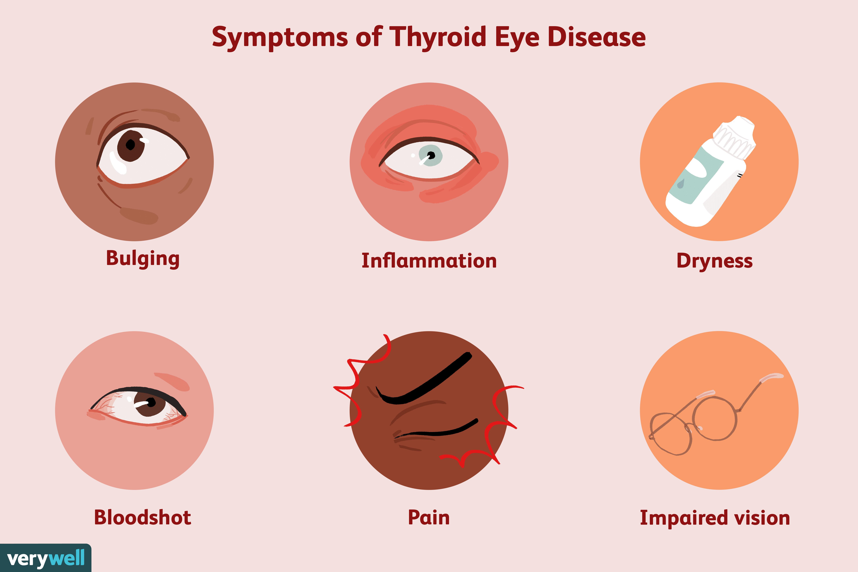 Thyroid Eye Disease Symptoms Causes Diagnosis And Treatment
