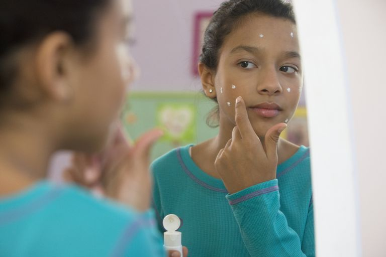 a teenage girl putting acne cream on her face