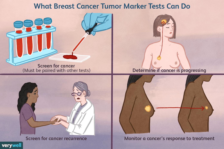 breast cancer tumor marker test