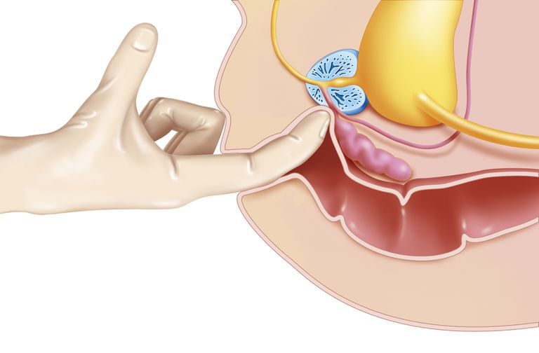 Illustration of the third stage of a digital rectal examination in the case of a prostate examination