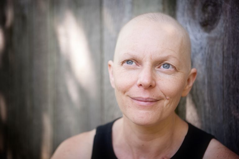 Coping With Hair Loss During Chemotherapy