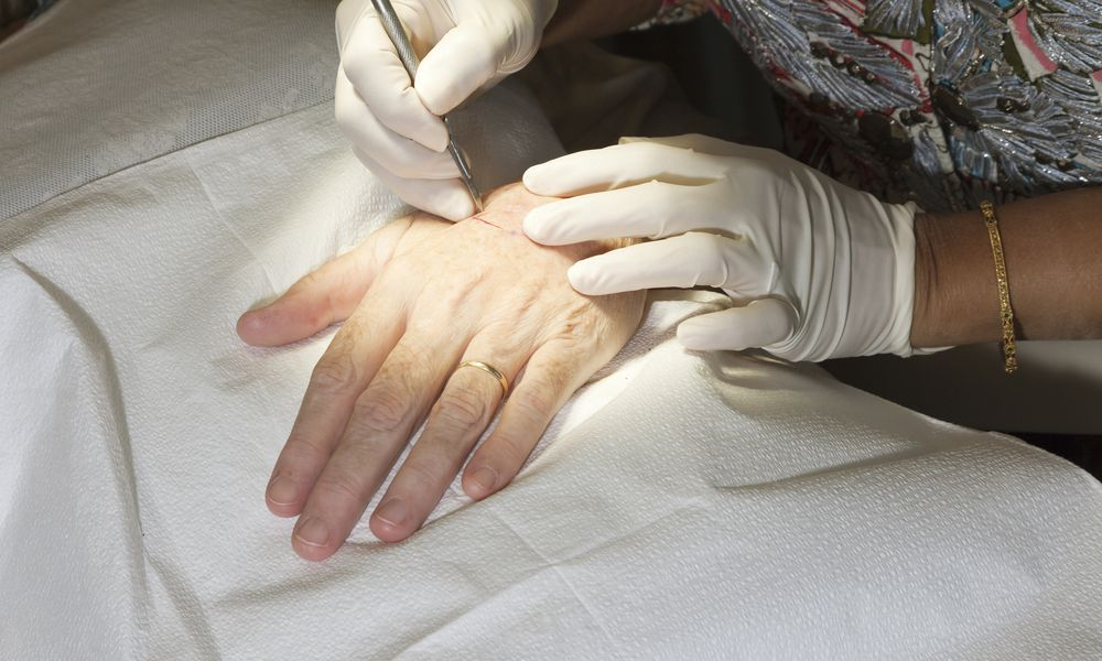 Mohs surgery for skin cancer on hand