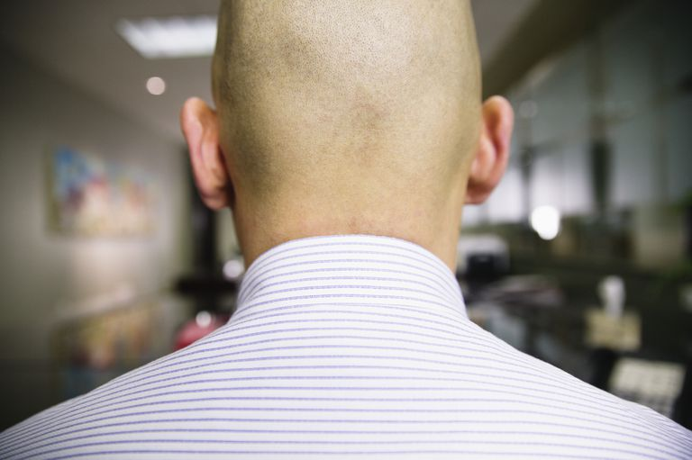 Closeup of the back of a man's head
