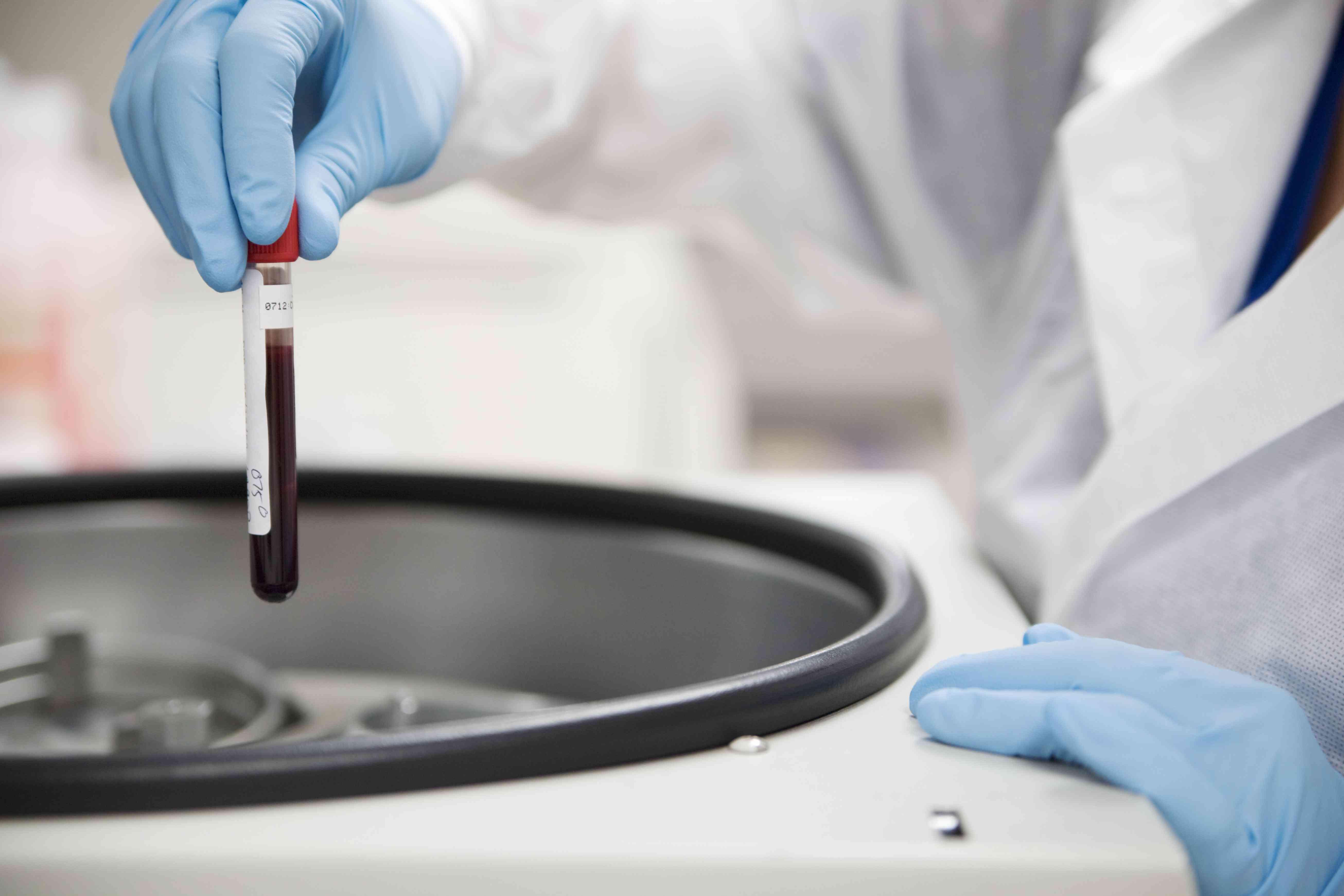 Lab worker handling blood sample