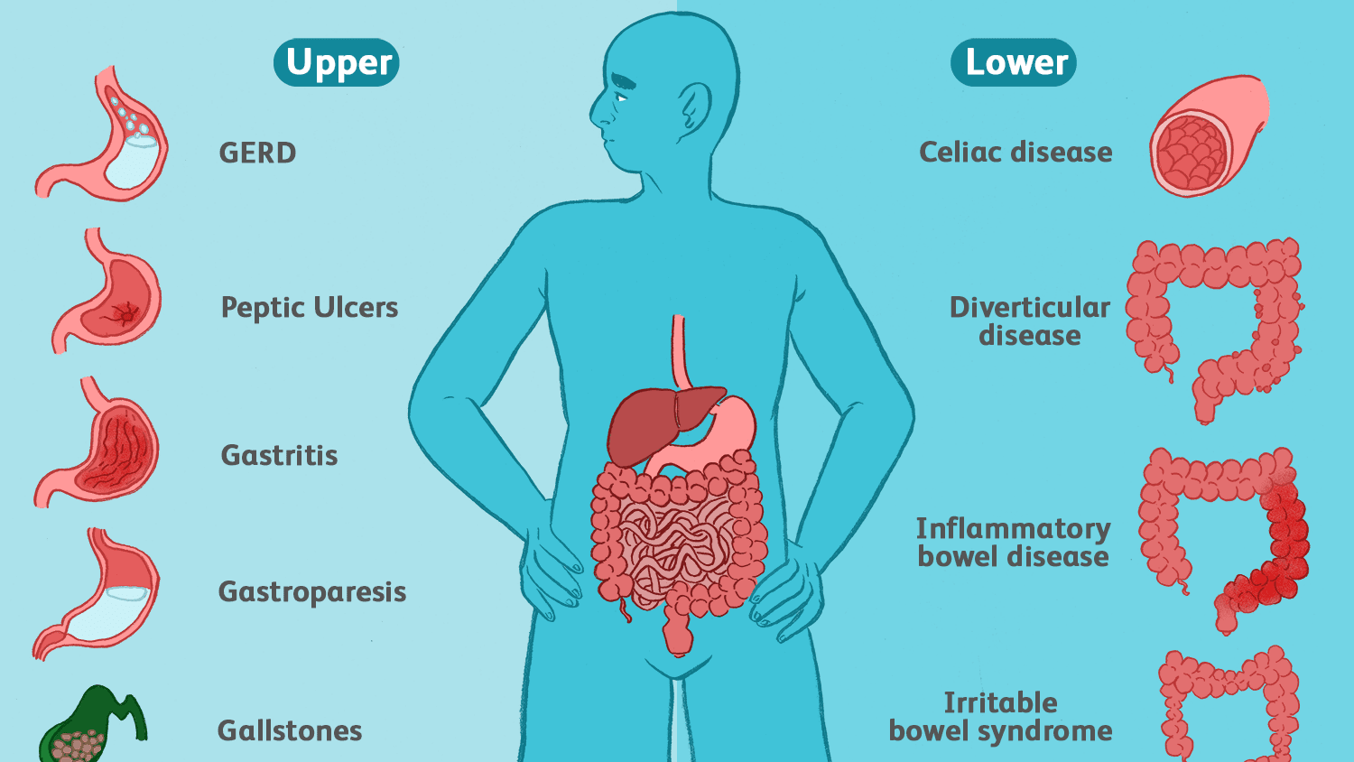 Symptoms of Common Stomach and Digestive Problems