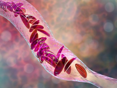 A digital illustration of sickled red blood cells