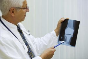 Doctor looking at knee replacement x-ray.