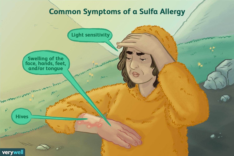 Common symptoms of a sulfa allergy