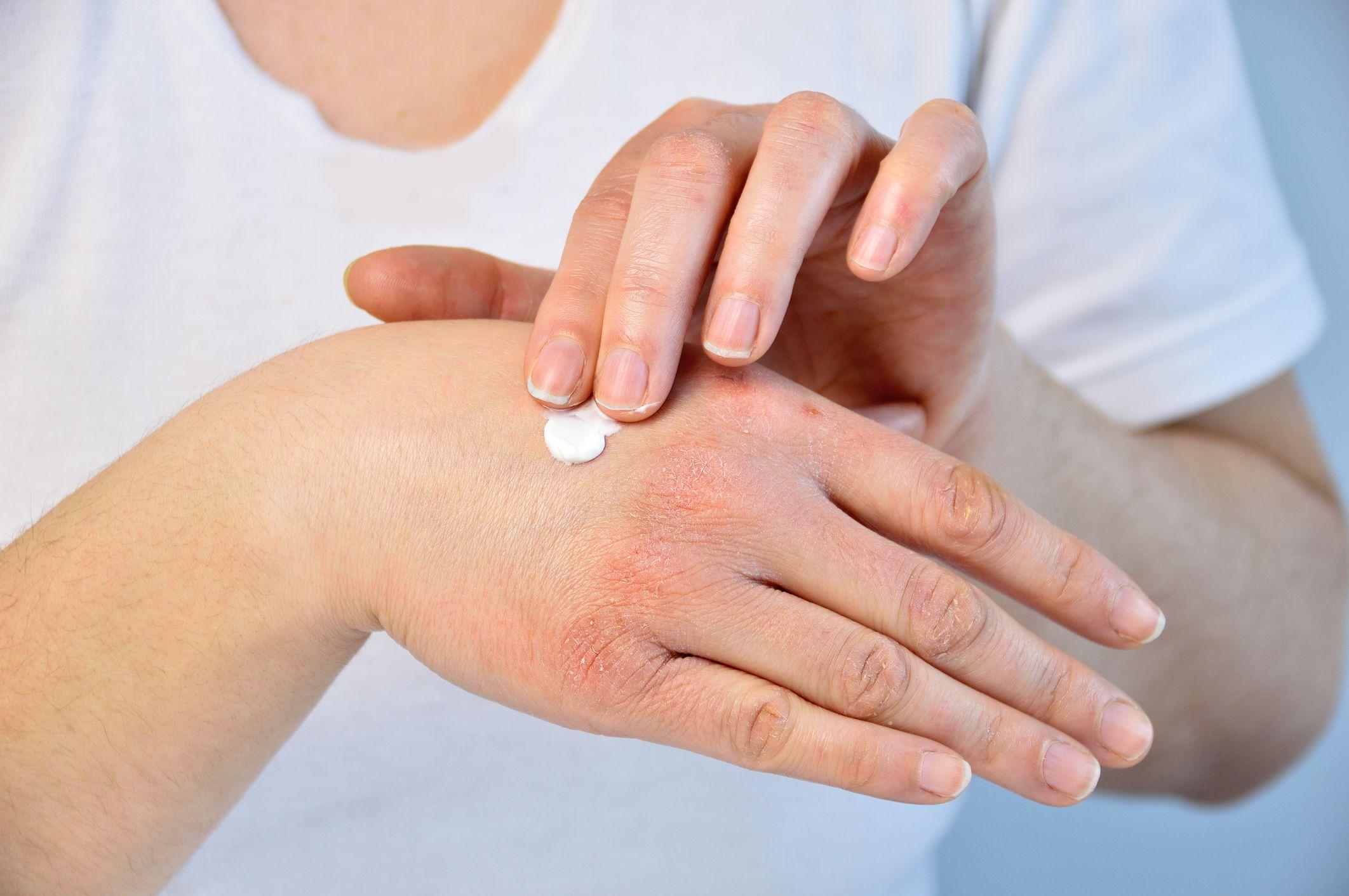 egy vörös folt a herezacskón és viszket psoriasis cream prescription clobetasol