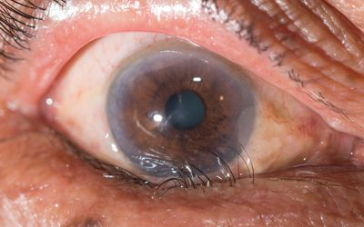 Eye with lower lid entropion.