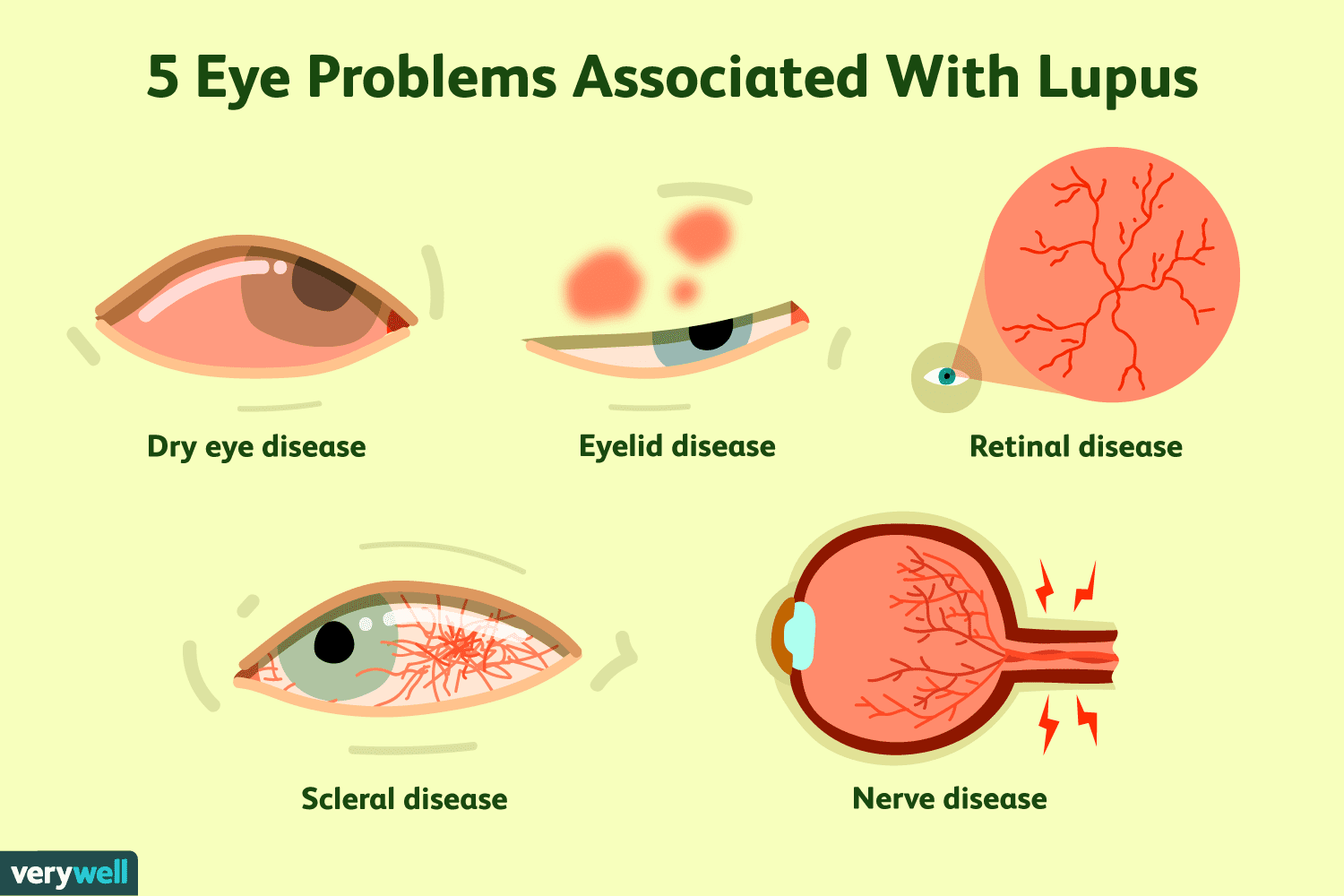 a9bce90a190 Five eye problems associated with lupus