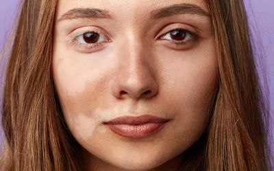 beautiful girl with a pigmentation on her half face and white eyelaces. close up portrait.
