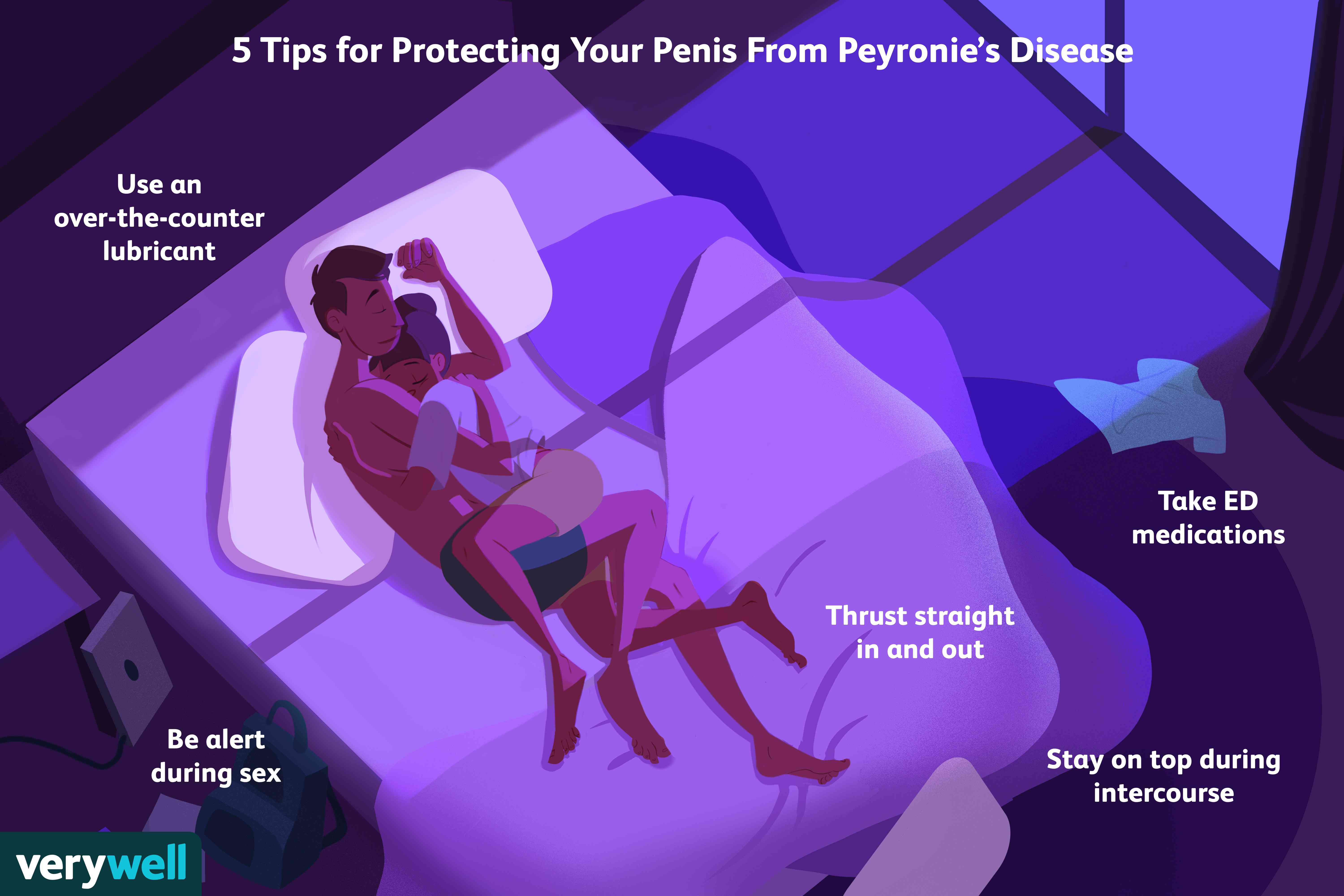 5 tips for protecting your penis from peyronies disease