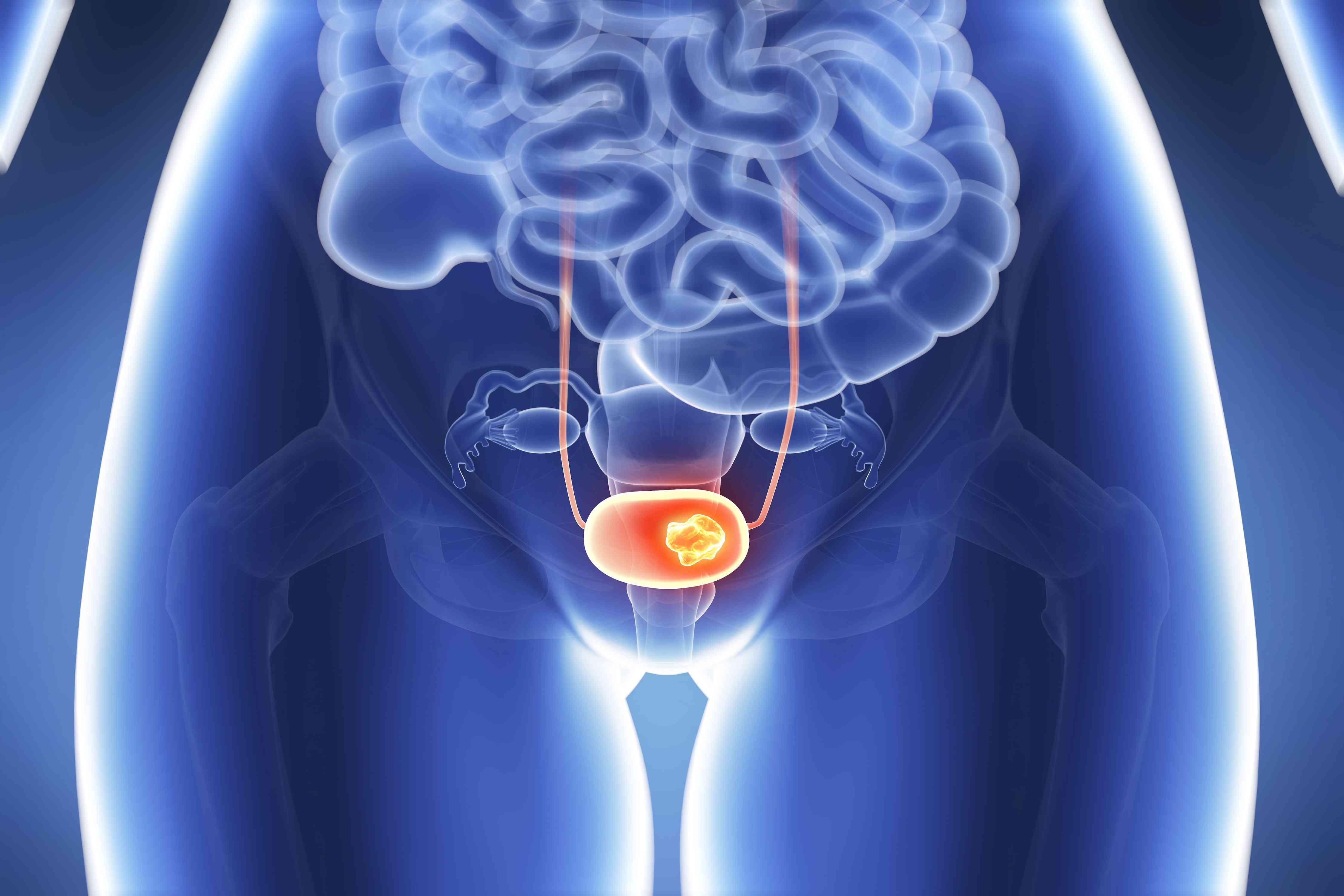 Bladder cancer shown inside a woman's lower pelvis