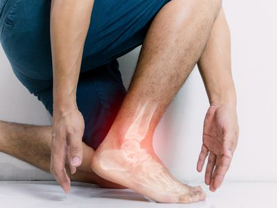 A person kneels, their foot in the foreground. Their foot has a digital illustration of an glowing red x-ray image, the bones of their foot showing, as though the foot is painful.