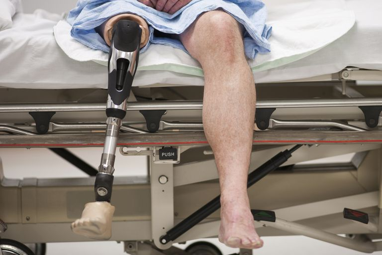 An amputee patient wearing a leg prosthesis