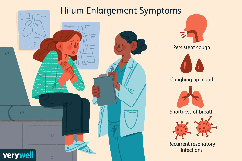 Hilum Enlargement Symptoms